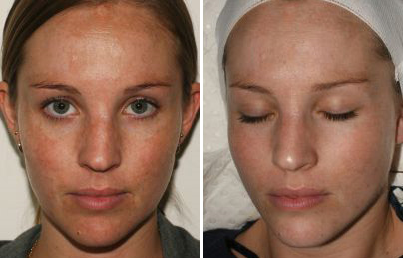 Chemical Peels Revitalase